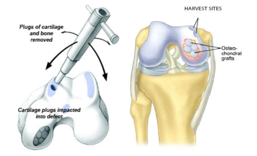 Osteochondral Autografting – Mosaicplasty Surgery