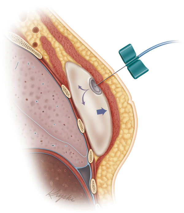 Placement Tissue Expanders