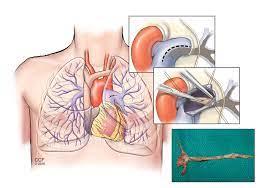 PTE – Pulmonary Thromboendarterectomy