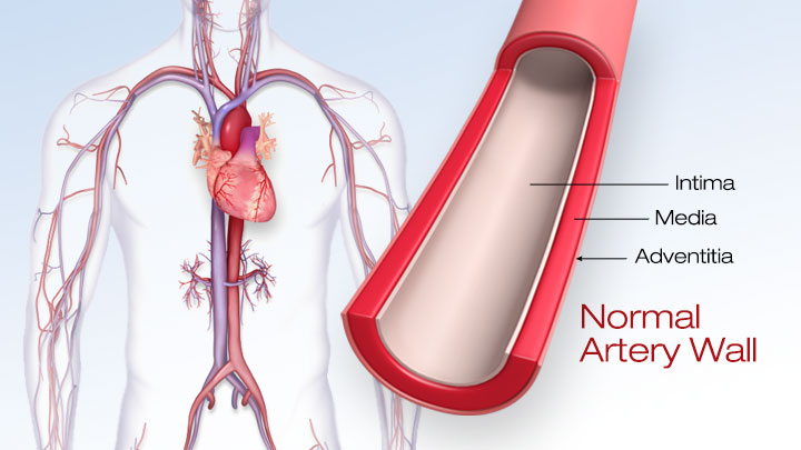 Peripheral Angiogram