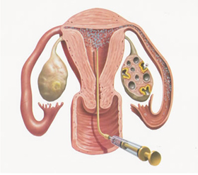 Peritoneal Oocyte and Sperm Transfer (PROST)