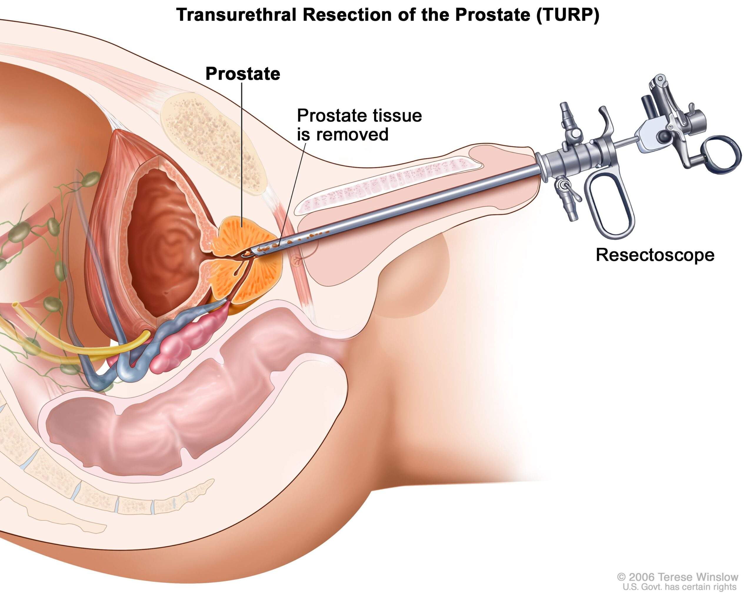 Prostate Cancer-Surgical