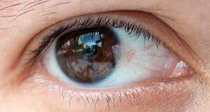 Pterygium Removal Surgery