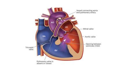 Pulmonary Atresia Surgery
