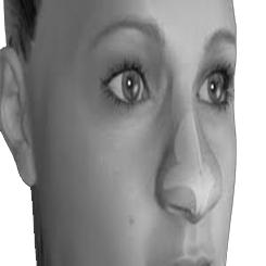 Rhinoplasty tip