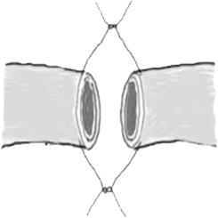 Urethroplasty