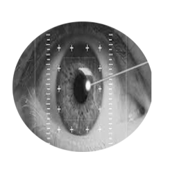 Yag Laser Capsulotomy