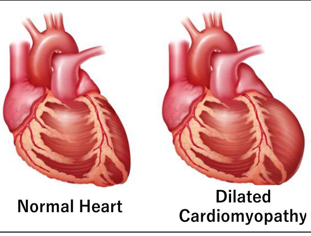Pediatric Cardiomyopathy Treatment